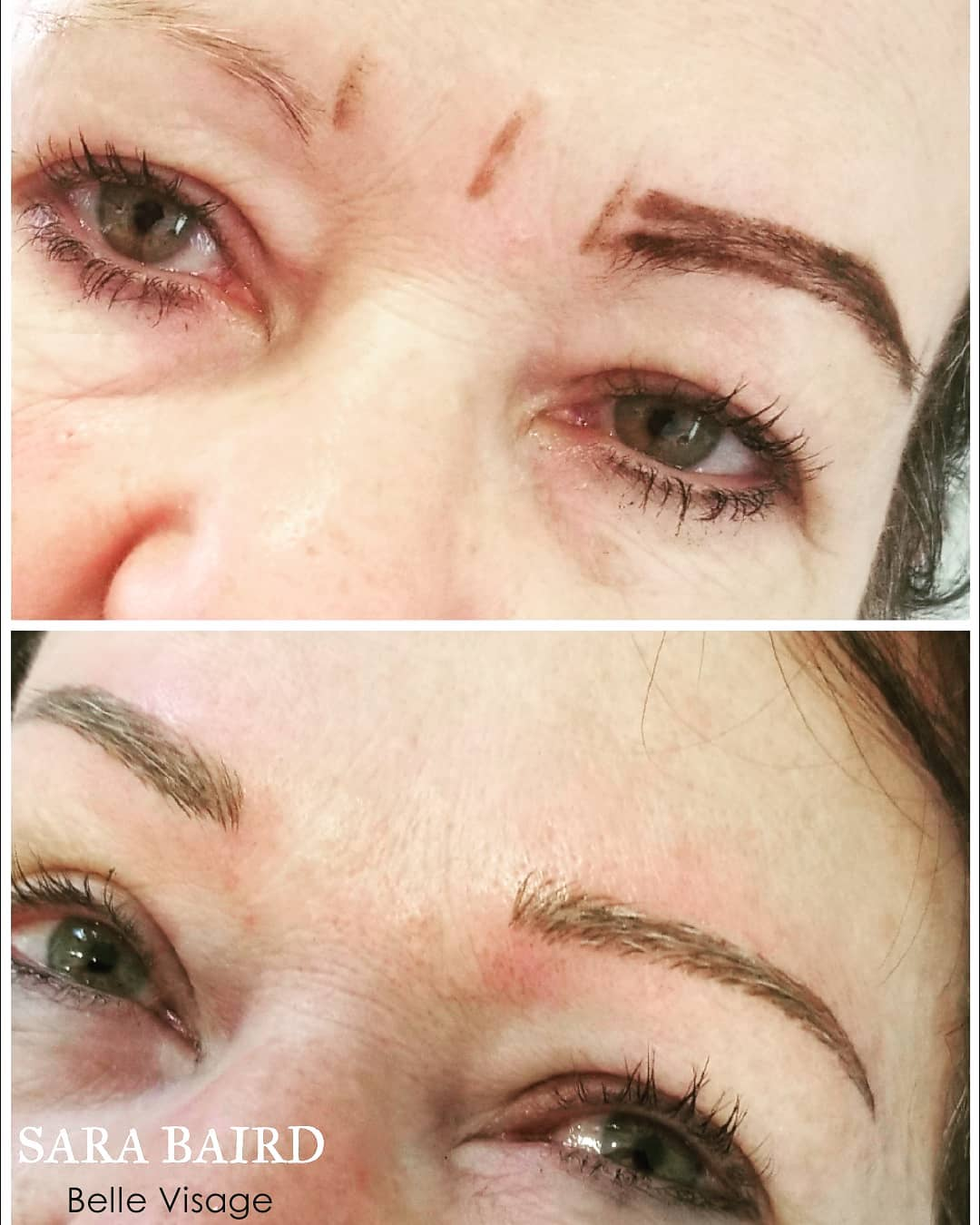 before and after view of woman eyebrow