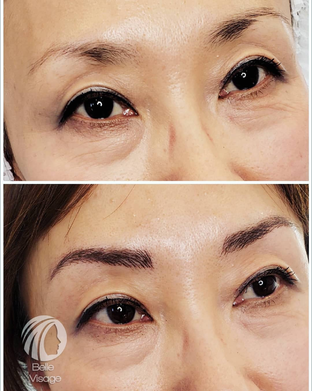 woman eyebrow before and after view