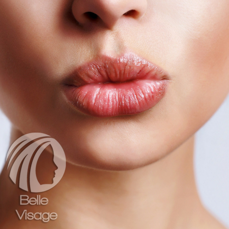 woman showing her fuller lips