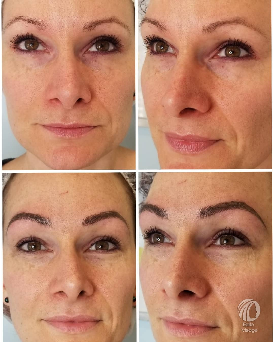 collage of permanent eyebrow before and after view