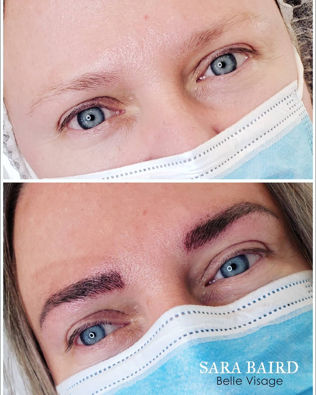 eyebrow before and after view