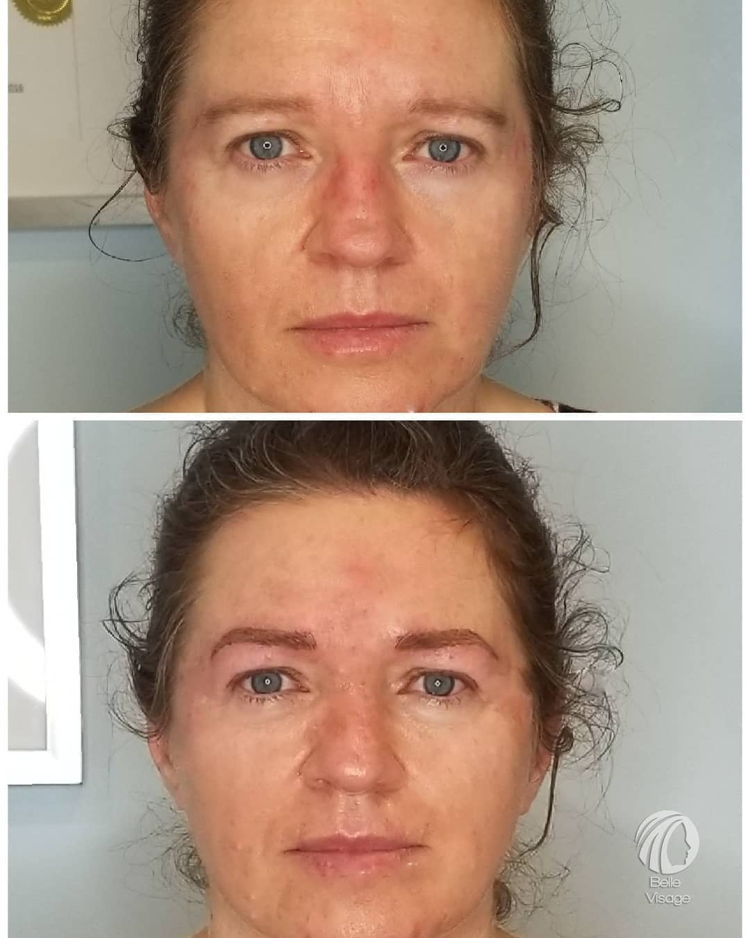before and after view of permanent eyebrows